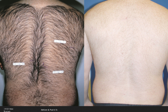 Hair-Removal-Before-After-Photo-1