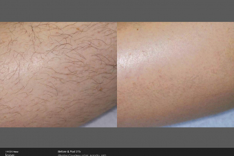 Hair-Removal-Before-After-Photo-2