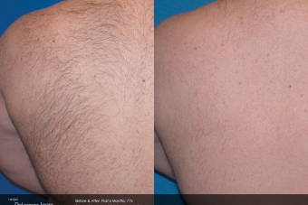 Hair-Removal-Before-After-Photo-3