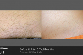 Hair-Removal-Before-After-Photo-7